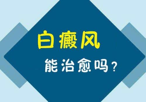 昆明治疗白癜风哪家医院好?早期的白斑可以治好吗?